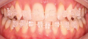 New Generation Orthodontics