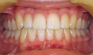 Marple Dental Practice Cosmetic Orthodontics